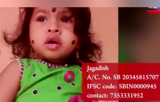 <font color=red><center>An Appeal:<P> </font color=red></center> Udupi - 1.8 year old baby Panvika needs your help