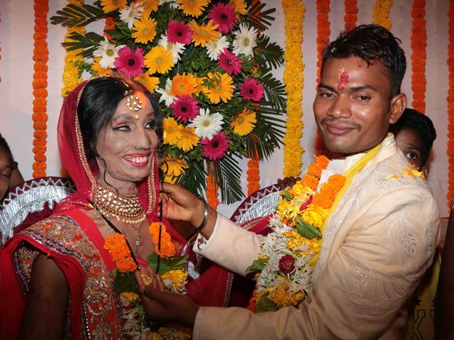 Acid attack survivor finds love in a wrong number, gets a Bollywood wedding