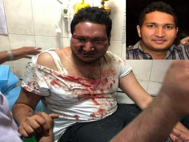Son of Congress MLA attack youth in Bengaluru pub