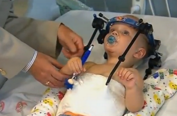 Toddler's head 'reattached' to neck after car crash in Australia
