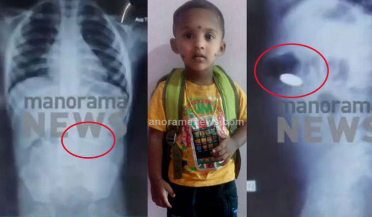 Kerala: Three-year-old boy dies after swallowing coin