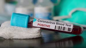 16 new cases for Coronavirus positive reported in Udupi district today on Friday, July 3