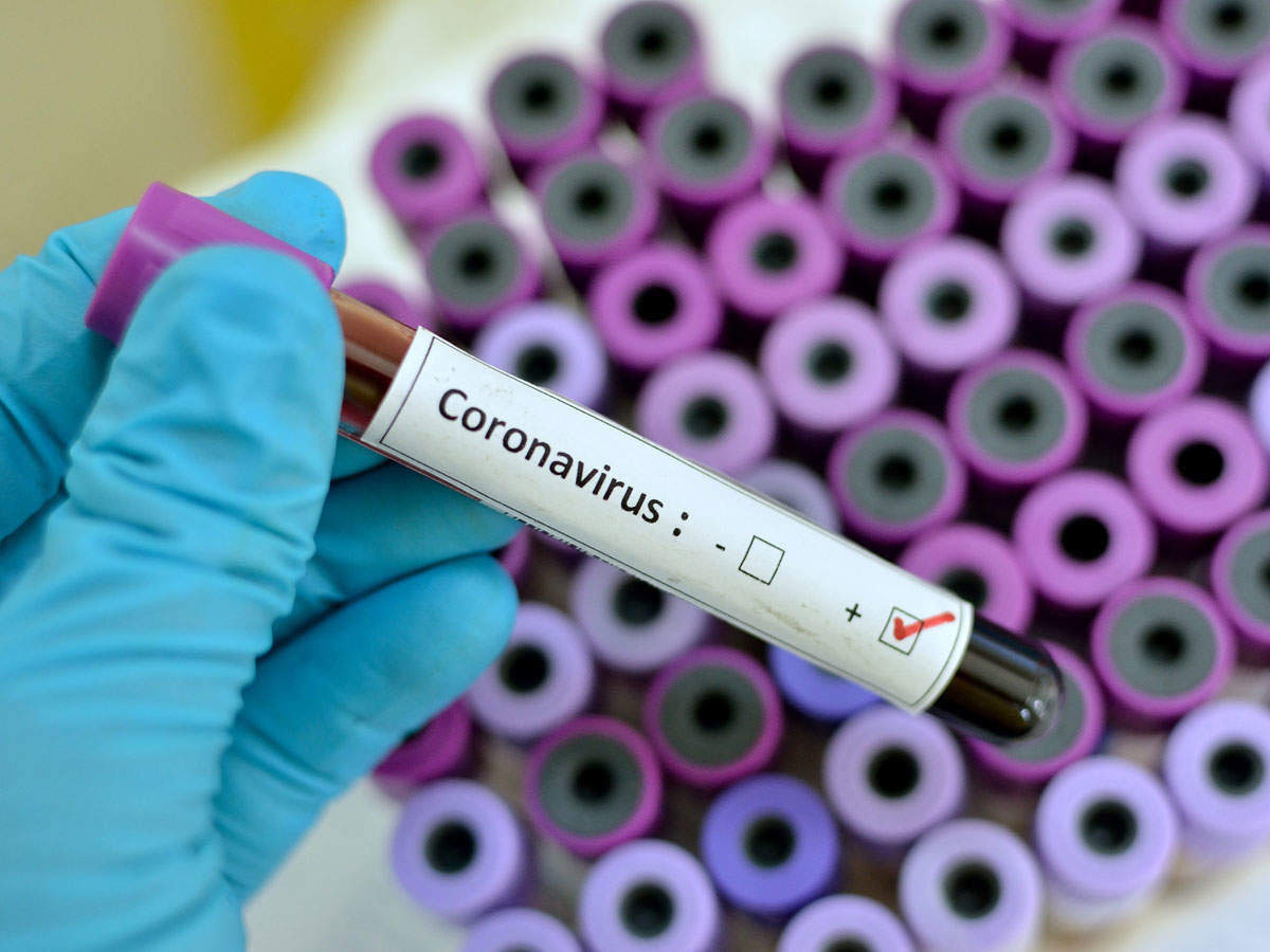 62 new cases of coronavirus positive confirmed in Udupi district today, June 3.