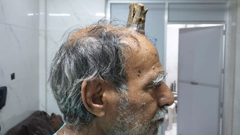 74-year-old MP man grows devil's horn after injury