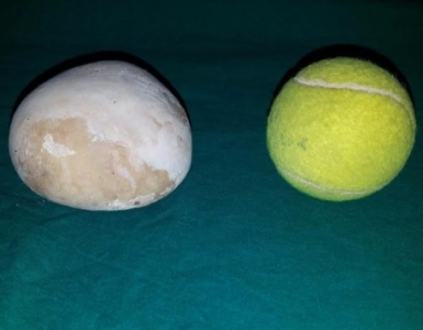 Kidney Stone bigger than tennis ball successfully removed in KMC, Hospital, Manipal